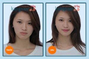 hinh-anh-don-cam3-copy